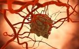Cancer Cell:新研究发现NEK2基因与癌症耐药性相关