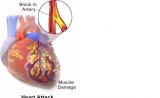 吸烟、糖尿病和糖尿病会增加女性患心脏病的风险