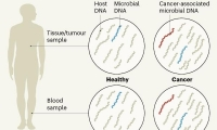 "AI版""滴血测癌""!Nature:检测血液中微生物DNA,癌症早诊断"