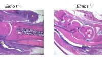 Nature子刊:发现类风湿关节炎潜在治疗靶点