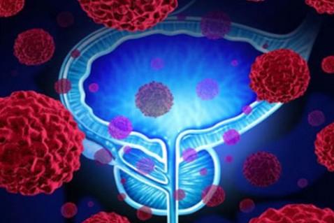 顽固性前列腺癌,有望迎来新疗法