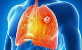 3大里程碑!Nature:过去20年,肺癌治疗取得巨大进步