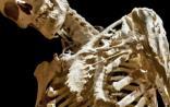 """STM:""""珊瑚人""""肌肉变骨骼背后的机理和治疗方法"""