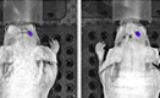中科院合肥研究院恶性脑胶质瘤分子病因研究取得进展 | Cancer Research
