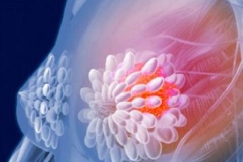 乳腺癌复发怎么办?新疗法有望控制乳腺癌复发