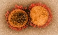 新冠患者癥狀消失8天后仍具有傳染性,10月后或有疫情高峰