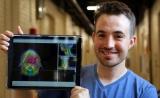 癌症治疗进入AI时代!自动化放射治疗了解一下