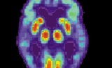 SLEEP:白天极度嗜睡或与阿尔茨海默病风险增加有关