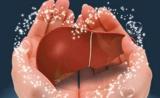 厦门大学周大旺组Cancer Cell揭示肝癌发生重要机理