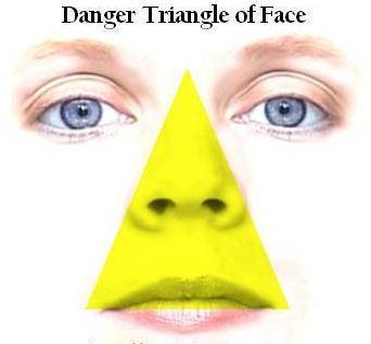 面部危险三角区