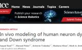 """Science:創建人腦""""入口"""",解析唐氏綜合征對大腦的影響"""