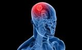 Nature子刊:CRISPR应用再拓展!寻找恶性脑瘤的关键基因突变