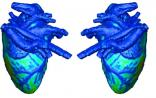 3D打印生物傳感器 可植入心臟進行檢查