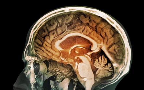 """PNAS:脑子进""""霾""""易患老年痴呆,是有科学依据的"""
