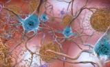 最新揭秘!Nature:免疫细胞导致阿尔茨海默症恶化!