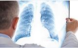 流行病学研究:维生素C、胡萝卜素等抗氧化剂可以降低肺癌风险