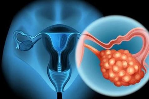 """它被称为""""妇科第一癌"""",每20分钟带走一名女性"""