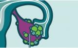卵巢癌新型靶向药Zejula(niraparib,尼拉帕尼)