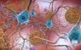 希望!阿尔茨海默病新药2期临床最新出炉,减缓认知衰退效果显著