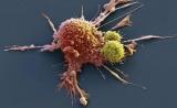 大幅改善CAR-T癌症治疗效果,梅奥诊所公布最新临床前研究成果