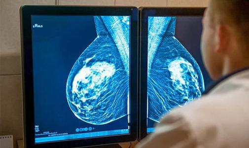 """对抗三阴乳腺癌化疗耐药性,MPS1靶点新药""""重振""""紫杉醇功效"""