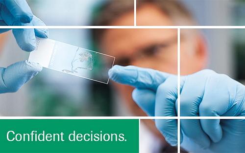 "FDA批准首个EGFR液态活检技术,肺癌""精准医疗""再进一步"