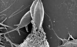 首次发现!身体被寄生虫感染,时间很重要