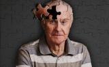 """Cell揭示阿爾茨海默病新機制:大腦""""清潔工""""能量不足,無法清除蛋白斑"""