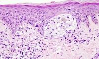 速览 | 饿死黑色素瘤癌细胞解决耐药性?