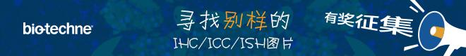 有奖征集 | 暗藏玄机,你的IHC/ICC/ISH图片像什么?