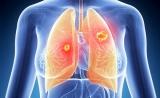 肺癌与骨骼的关系可导致肿瘤恶化