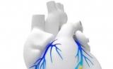 独角兽数字健康公司HeartFlow获得日本心脏诊断技术的报销批准