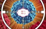 PD-1肺癌市场战局已定,其他适应症战况如何?