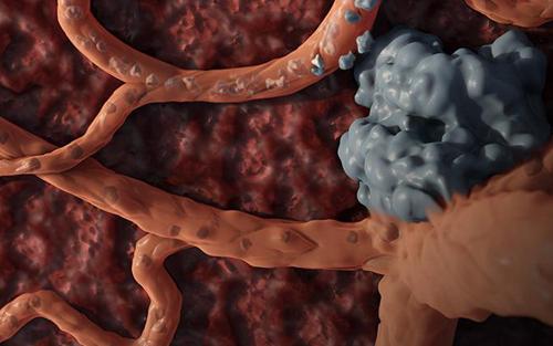 【Science特刊】关于癌症转移的前沿研究