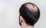 值得期待!药物可逆转与高脂肪饮食相关的脱发、白发和皮肤损伤