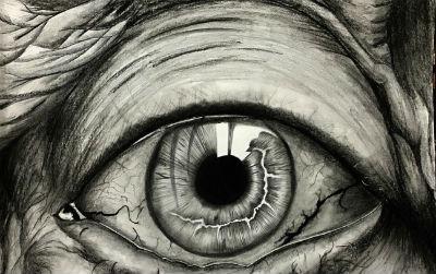 华人Nature子刊:青光眼是可治愈的免疫疾病