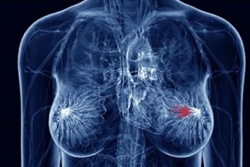 乳腺癌稳居女性第一大癌,做到这些能帮你尽量避免!