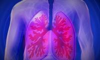 Nature:中国科学家揭示尿苷二磷酸葡萄糖抑制肺癌转移的新功能