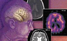 PNAS:新研究发现与痴呆症有关的蛋白质