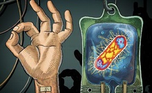 NDM-1超级耐药细菌正在全球快速传播