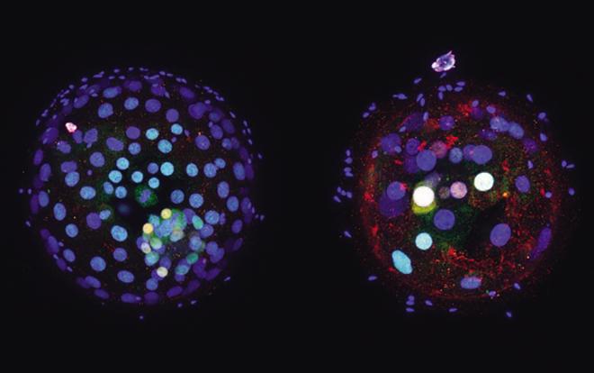 Nature:史无前例!全球最先被批准的人类胚胎基因编辑研究结果刚刚发表