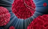突破!Cell:新免疫療法可治療多種癌癥,臨床試驗初步成功