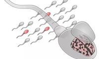 Nature子刊:評估后代患自閉癥的風險,可以通過檢測精子的突變實現
