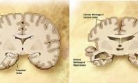 当遗传风险因子遇到长寿基因,阿尔茨海默症高危人群命运会被改写吗?