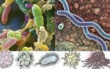 当癌症遇到微生物,免疫细胞从中牵线搭桥,齐演悲喜剧