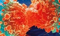 清华大学朱永法等团队开发新方法:10分钟内消除肿瘤,50天内小鼠存活率从0上升到100%
