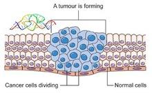 """卵巢癌细胞借助RNA分子""""挟持""""周围细胞"""