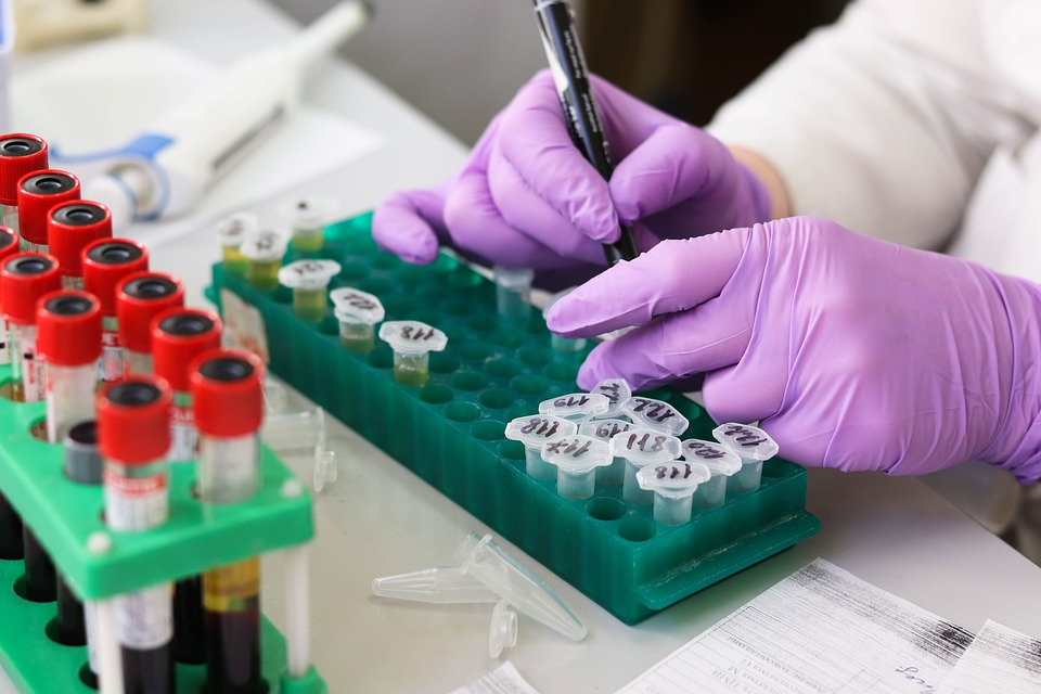 檢測新冠病毒核酸,痰液樣本比咽拭子更準確?