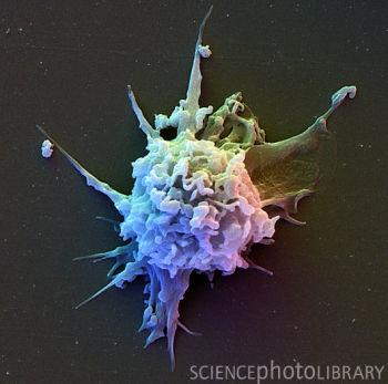 t淋巴细胞的扫描电镜图-图库-生物探索