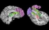 安全运动!研究称橄榄球造成的撞击会影响大脑